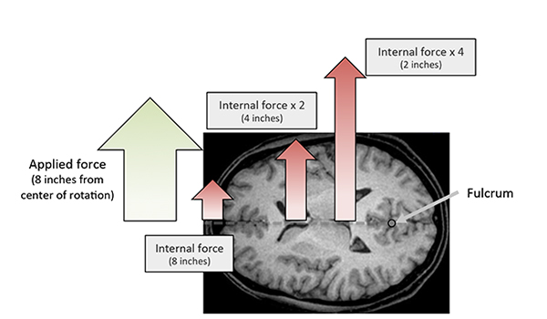 "A Top View of the Brain with an applied force to the chin. The head rotates around the neck at the base of the skull. The force felt at points close to the center of rotation will be much higher than the force felt farther away. This is, of course, a very simplified view,"" from Fight Like a Physicist by Jason Thalken, PhD. Photo credit: Jason Thalken"